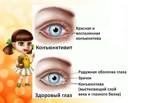 Отличия здорового глаза от глаза конъюнктивита