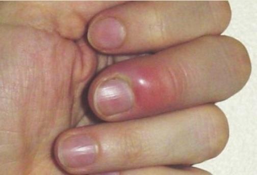 Чем обработать воспаленный палец