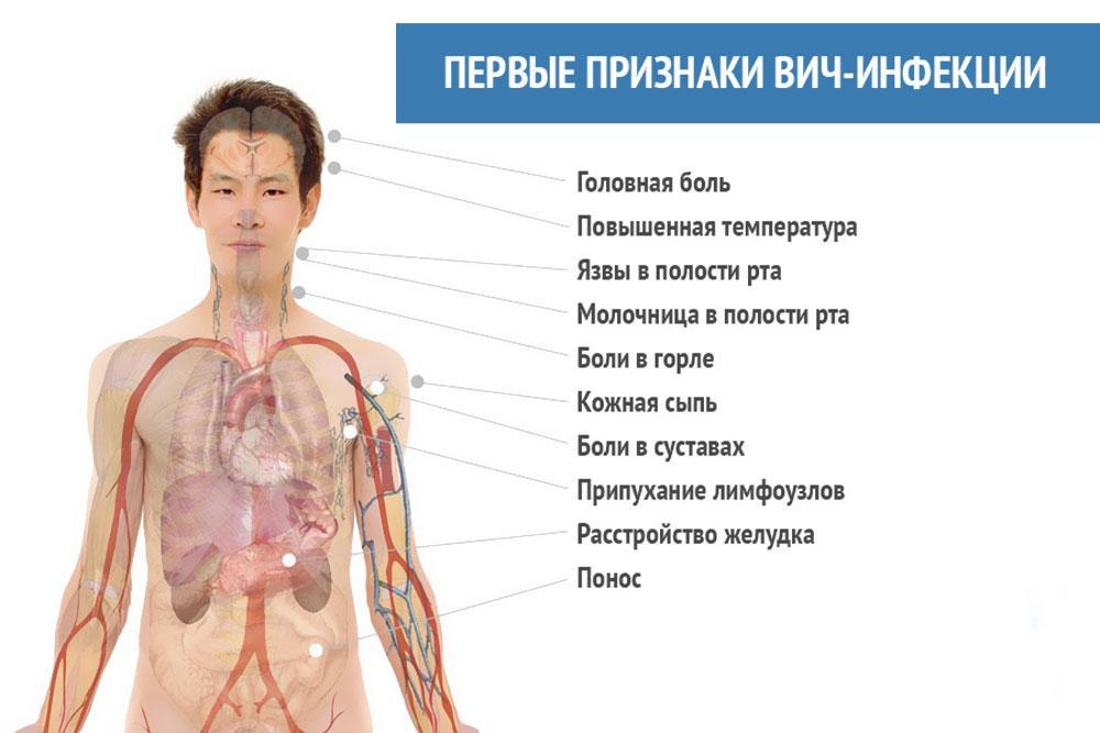 Первы признаки ВИЧ-инфекции