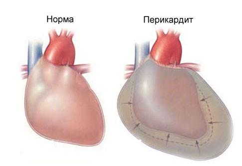 Перикардита сердца