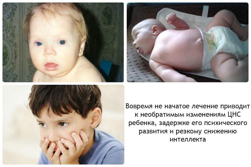 Последствия гипотиреоза при беременности