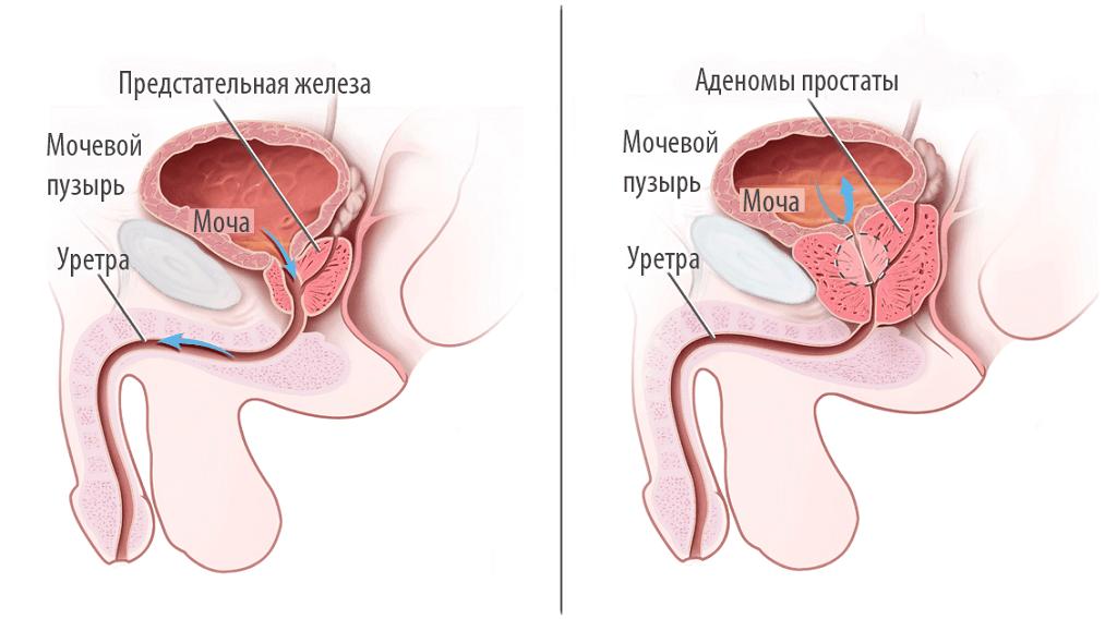 Предстательная железа в норме и аденома простаты