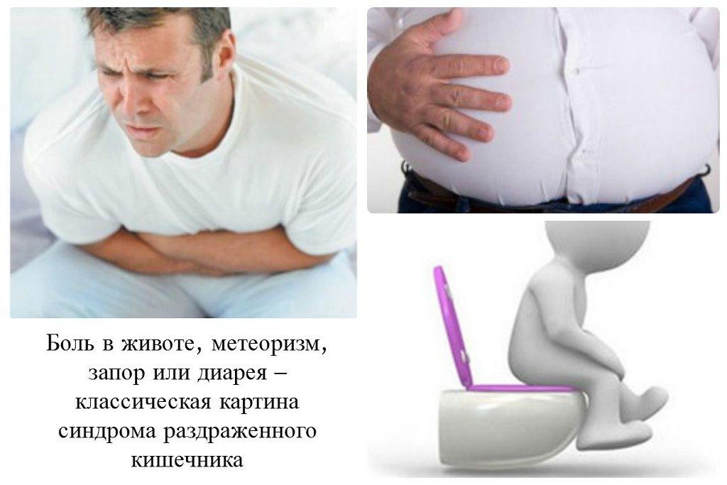 Боли в животе и газы у взрослых