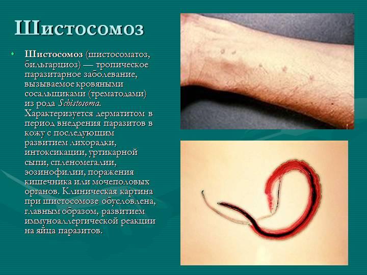 Признаки шистосомоза