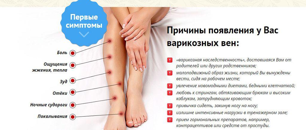 Причины и симптомы варикоза