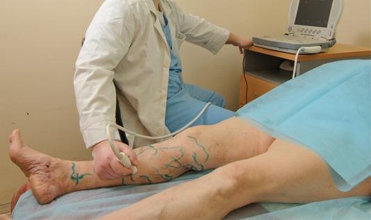 Проведение диагностики атеросклероза