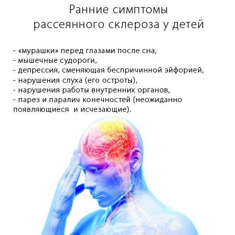 Ранние симптомы рассеянного склероза у детей