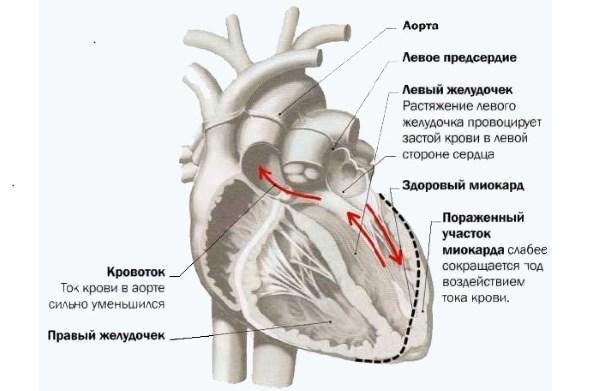 Сердце при поражении миокарда