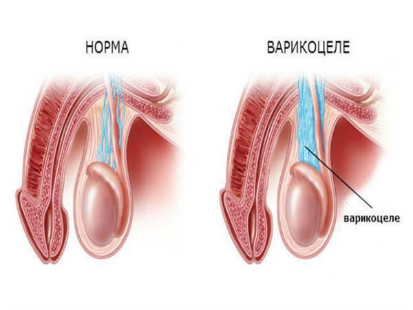 Симптомы варикоцеле у мужчин