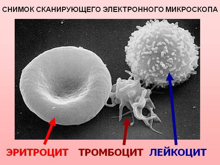 Снимок состава крови под сканирующим электронным микроскопом