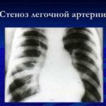 Стеноз легочной артерии у новорожденных