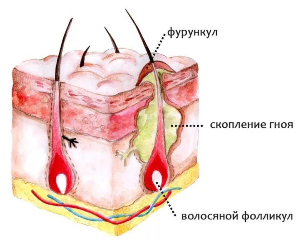 Строение фурункула