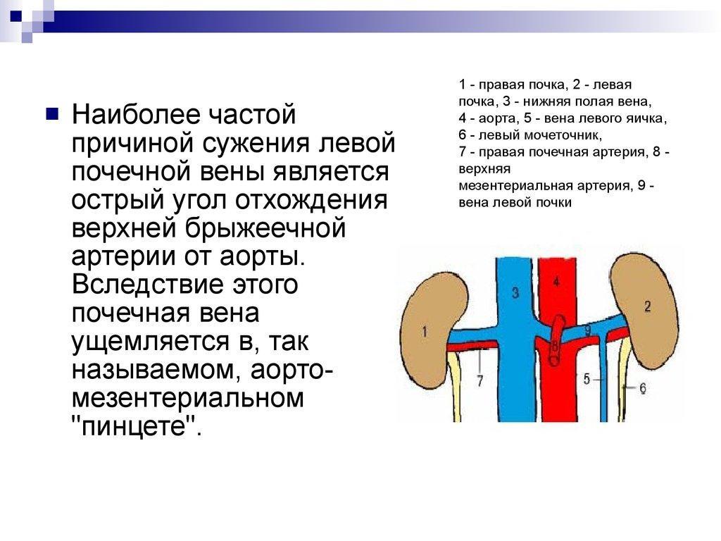 Сужение левой почечной вены как причина варикоцеле
