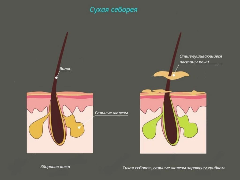 Сухая форма себореи волос