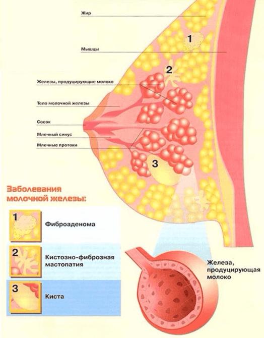 Схематичное изображение мастопатии