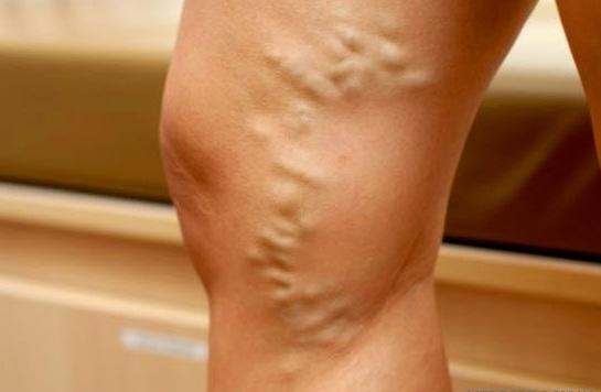 Таблетки от варикозного расширения вен на ногах