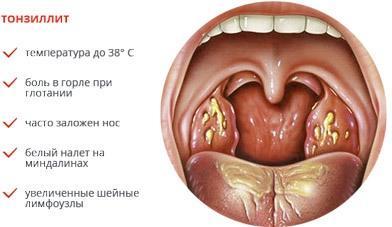 Тонзиллит как причина першения в горле