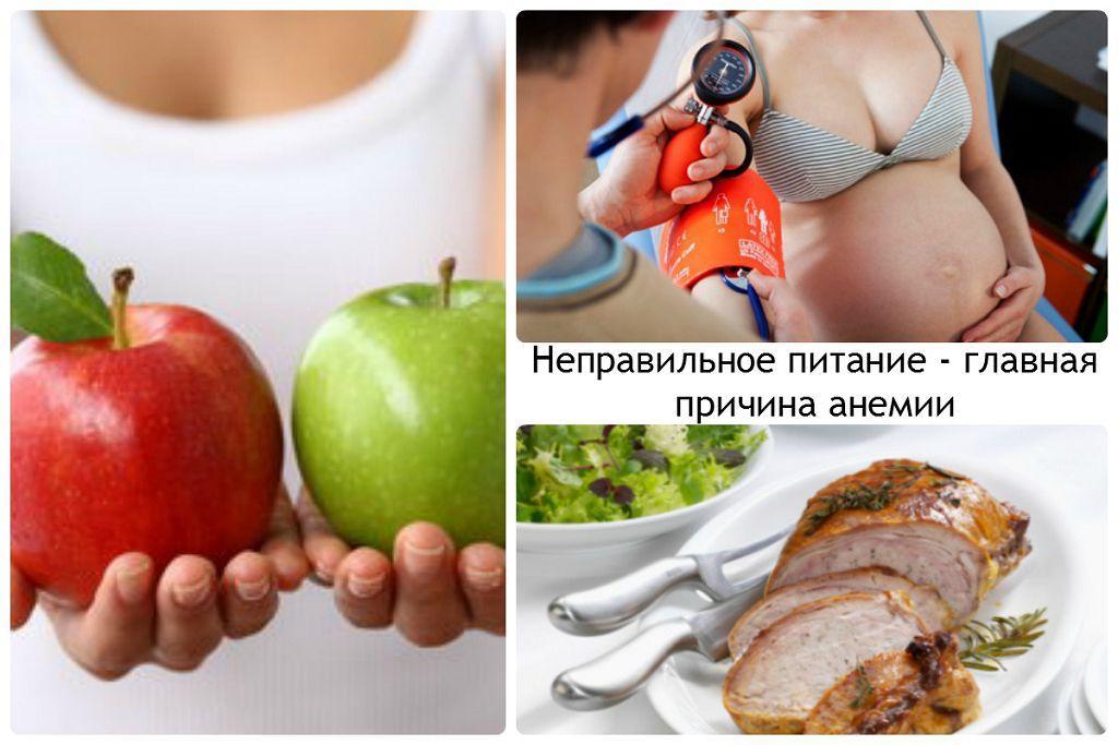Фактор питания при анемии