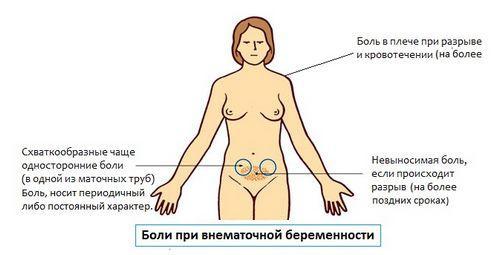 Характер болей при внематочной беременности