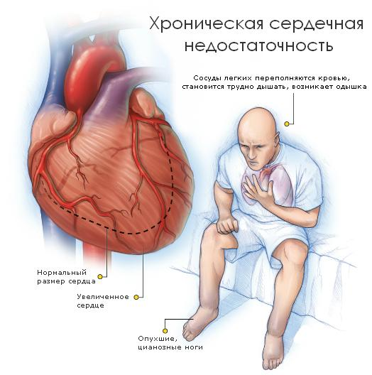 ХСН 1 степени ФК 2 - все о хронической сердечной недостаточности
