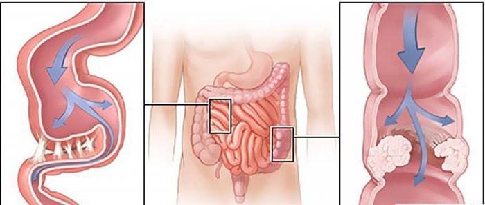 Что происходит в организме при кишечной колике