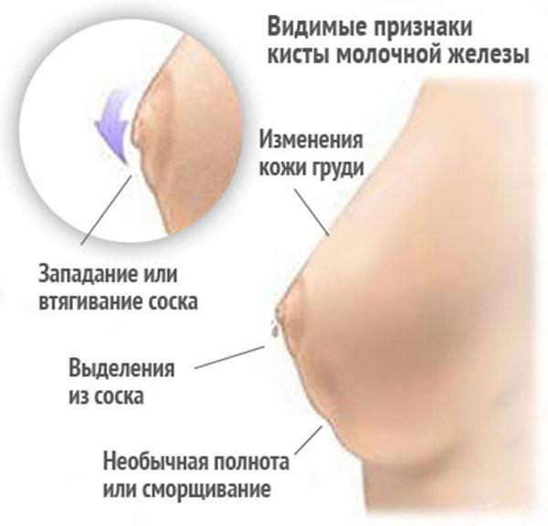 Видимые признаки молочной железы