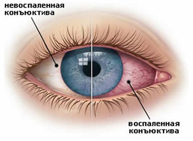 Воспаленная конъюнктива глаза