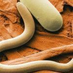 Гельминты у детей: симптомы и лечение