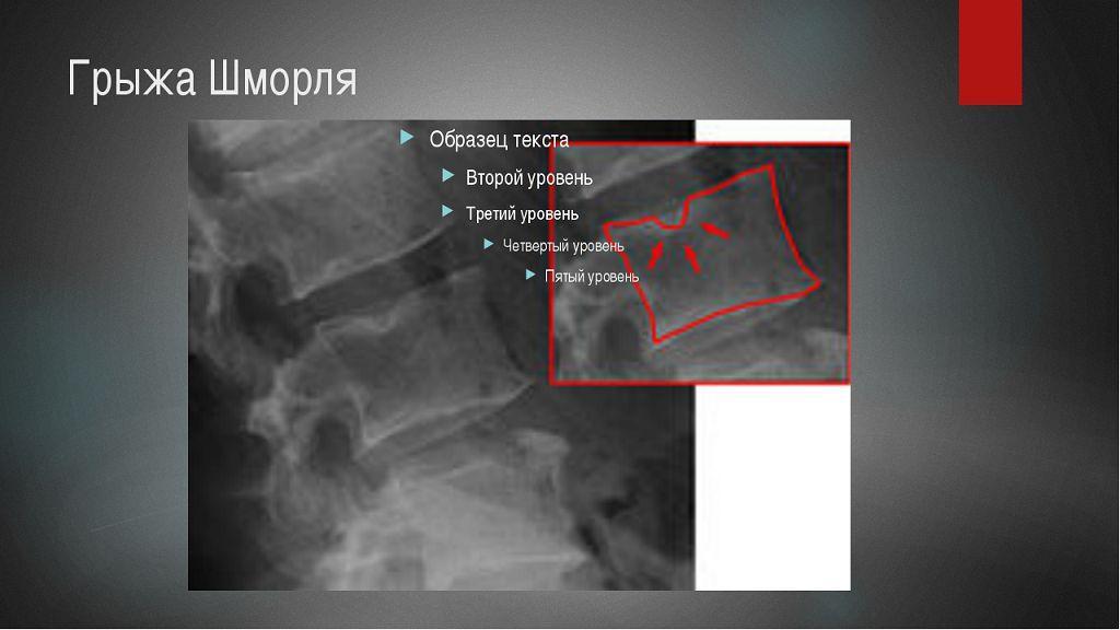 Грыжа Шморля на рентгене