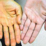 Желтуха: симптомы у взрослых