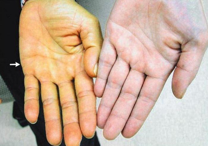 Желтуха: симптомы у взрослых - подробная информация