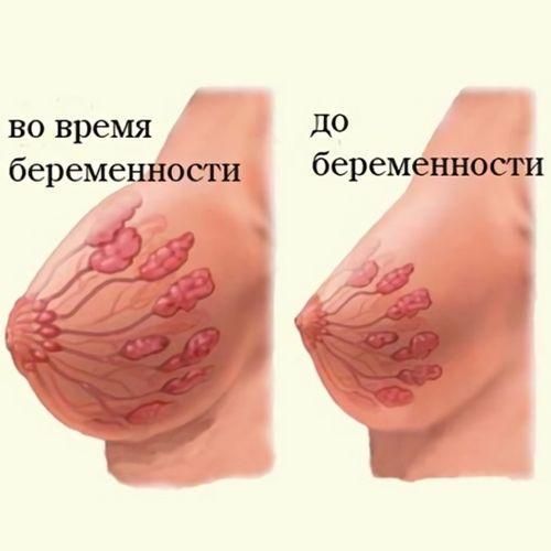 Изменение груди во время беременности