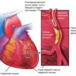 Инфаркт миокарда: симптомы и последствия
