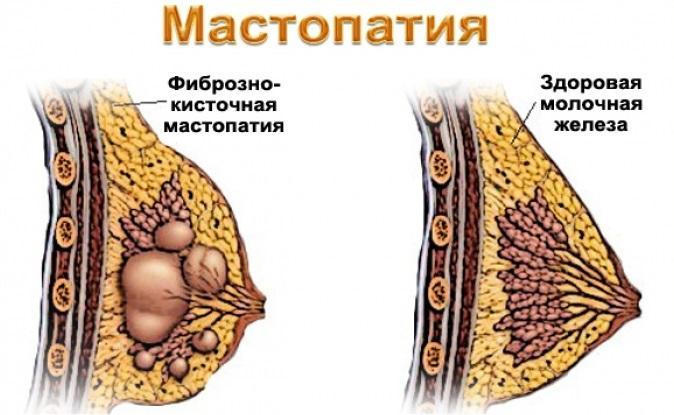 Как выглядит молочная железа с мастопатией