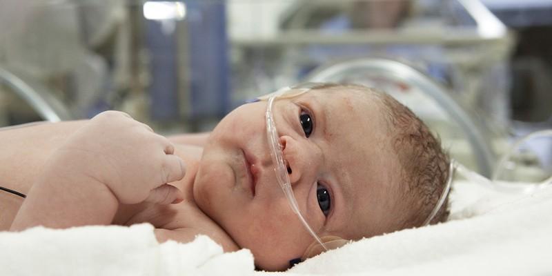 Субарахноидальное кровоизлияние у новорожденных