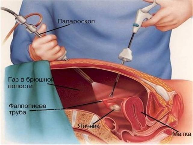 Лапароскопия кисты яичника