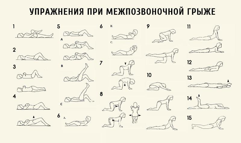 Лечебные упражнения при грыже поясничного отдела
