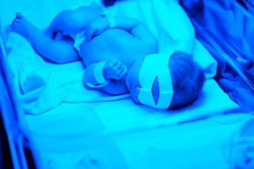 Лечение желтухи у новорожденного