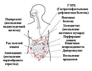 Локализация болей в животе в зависимости от болезни
