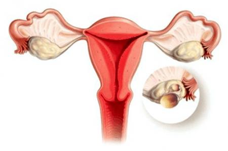 Лопнула киста яичника: симптомы