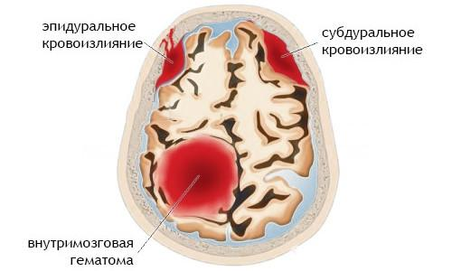 Места кровоизлияния в мозг