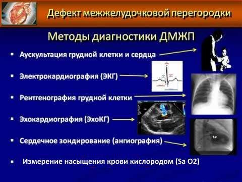 Методы диагностики ДМЖП