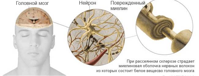 Миелиновая оболочка при рассеянном склерозе