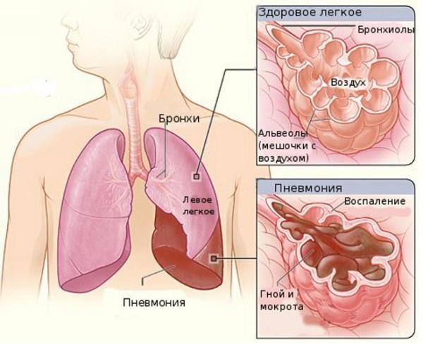 Микоплазма пневмония у детей
