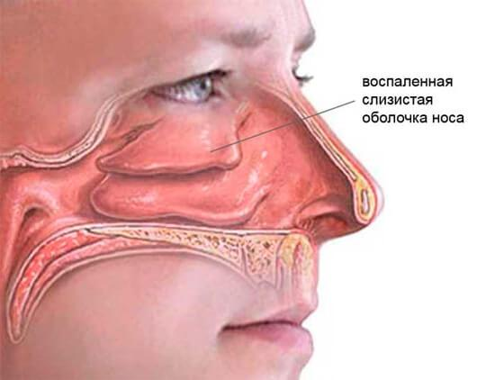 Носовая оболочка при насморке