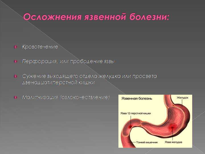 Осложнения язвенной болезни