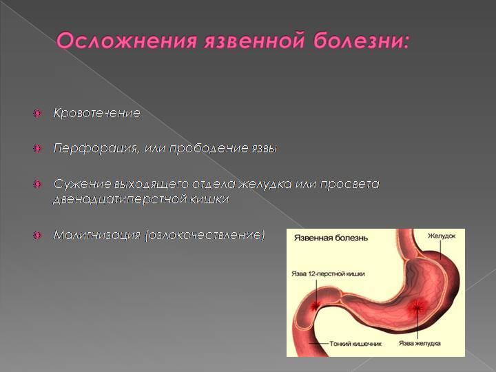 Диета При Язве 12 Перст - dietaonline62
