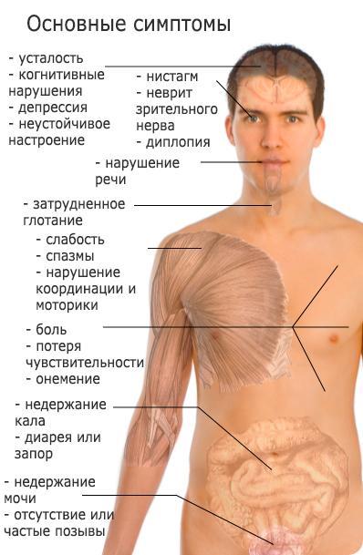 Основные симптомы рассеянного склероза