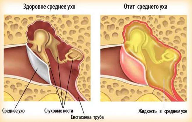Отличие здорового уха от уха со средним отитом