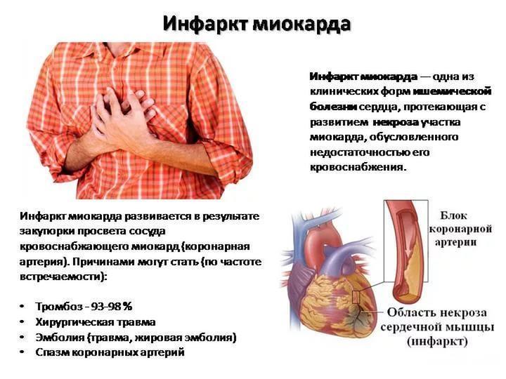 Инфаркт миокарда: симптомы и последствия - подробная информация